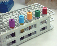 Row of vacutainer vials with blood in a rack